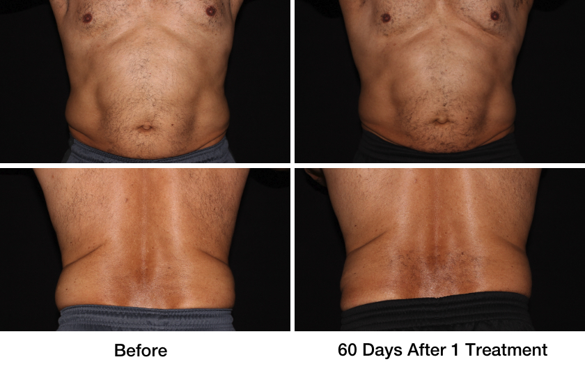 Wasatch CoolSculpting